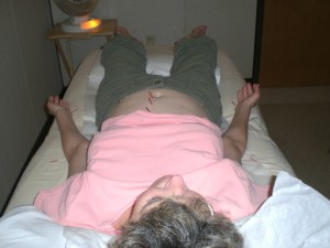 Leslie at the acupuncture clinic