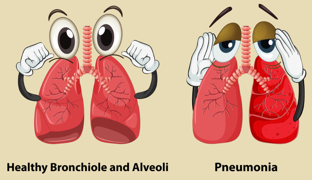 Illustration of healthy lungs and pneumonia lungs.